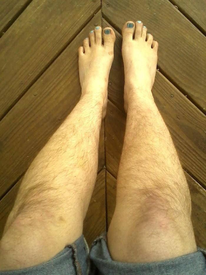 девоньки волосатые женские ножки фото внимание