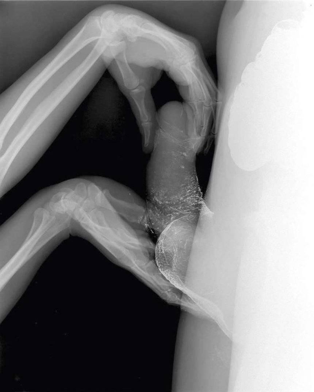 Половой акт в рентгене