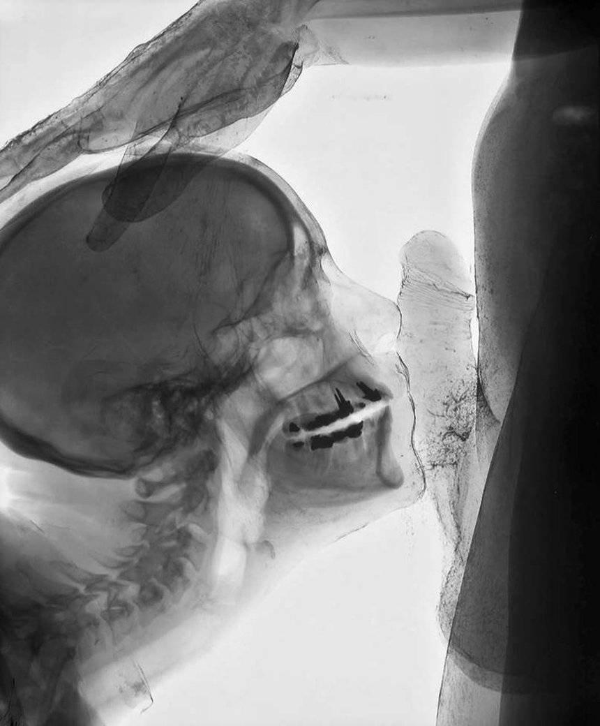видели, половой акт в рентгене блондинок-студенток университета
