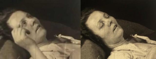 Эпидемия летаргии: заснувшие навсегда С миру по нитке