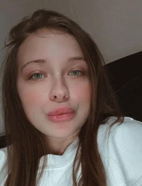 Девушка хотела увеличить губы гелем, но ситуация вышла из-под контроля С миру по нитке
