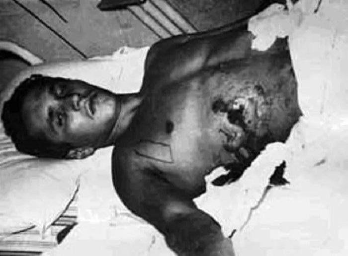 1619264623 sovetskie hirurgi razminirovali zhivogo cheloveka 5