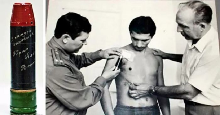 1619264662 sovetskie hirurgi razminirovali zhivogo cheloveka 1