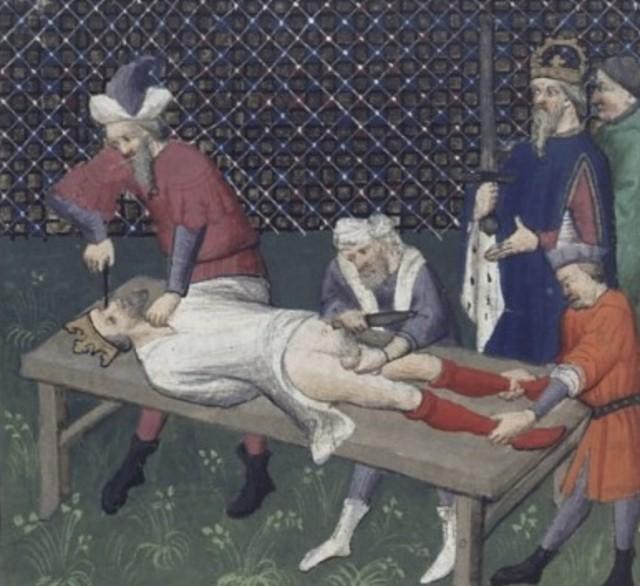 Как раньше боролись с мастурбацией С миру по нитке
